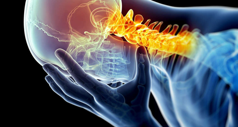 Cervicales y dolor de cabeza