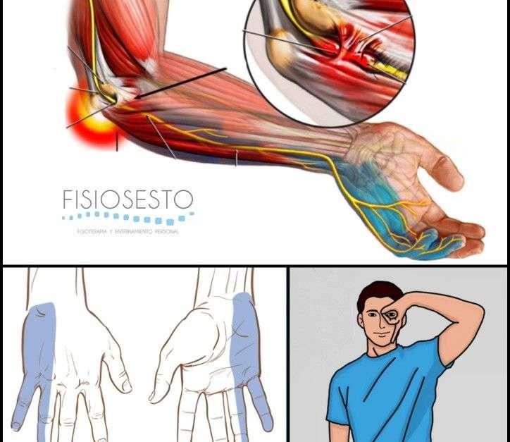Atrapamiento o síndrome del nervio cubital